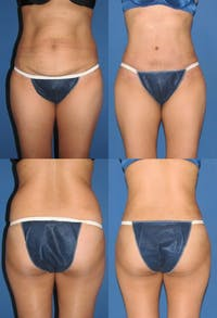 Liposuction Gallery - Patient 2158956 - Image 1