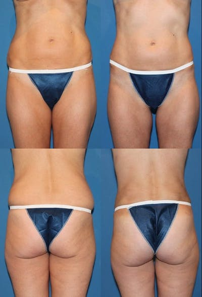 Liposuction Gallery - Patient 2158958 - Image 1