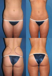 Liposuction Gallery - Patient 2158960 - Image 1