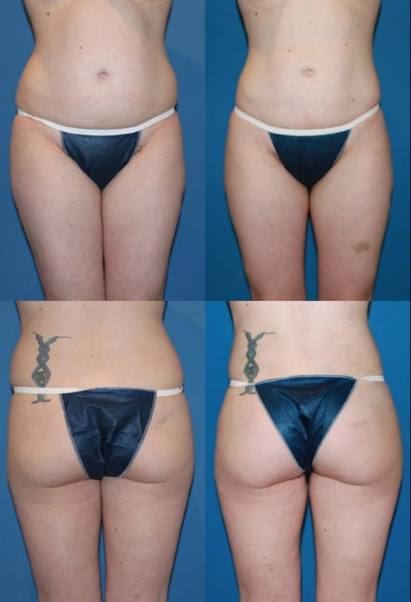 Liposuction Gallery - Patient 2158961 - Image 1