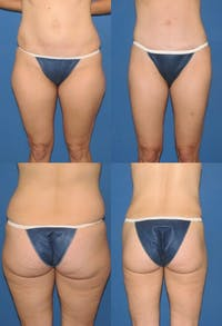 Liposuction: Female Gallery - Patient 2394717 - Image 1
