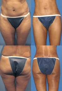 Liposuction: Female Gallery - Patient 2394718 - Image 1