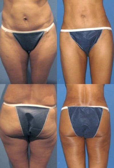 Liposuction Gallery - Patient 2158964 - Image 1