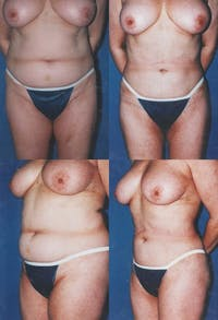 Liposuction Gallery - Patient 2158966 - Image 1