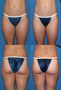 Liposuction Gallery - Patient 2158967 - Image 1