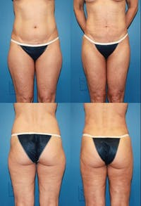 Liposuction: Female Gallery - Patient 2394722 - Image 1