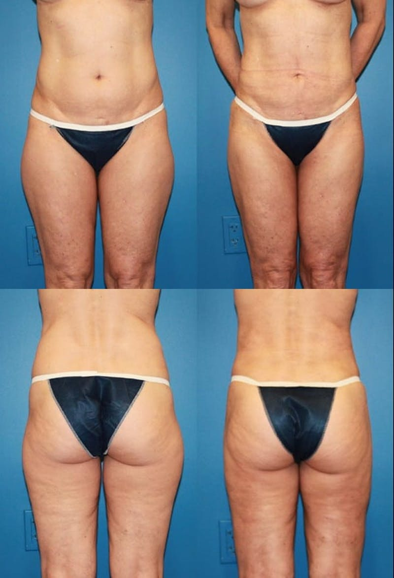 Liposuction Gallery - Patient 2158969 - Image 1