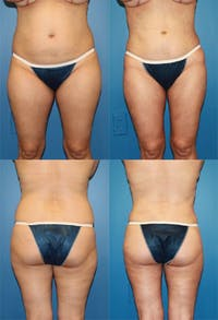 Liposuction: Female Gallery - Patient 2394726 - Image 1