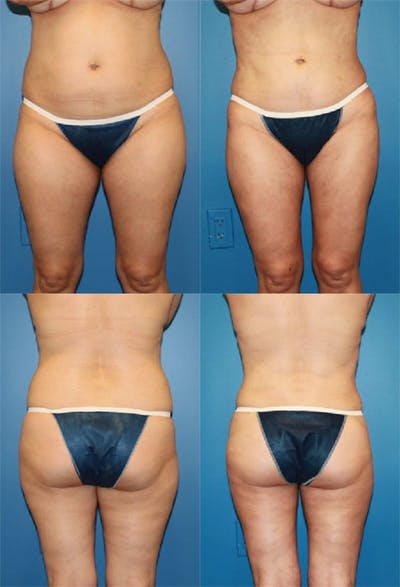 Liposuction Gallery - Patient 2158974 - Image 1