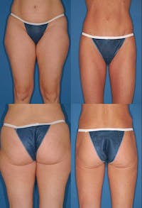 Liposuction: Female Gallery - Patient 2394727 - Image 1