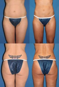 Liposuction: Female Gallery - Patient 2394728 - Image 1