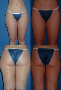 Liposuction: Female Gallery - Patient 2394729 - Image 1