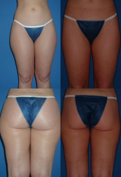 Liposuction Gallery - Patient 2158989 - Image 1