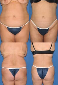 Liposuction Gallery - Patient 2158991 - Image 1