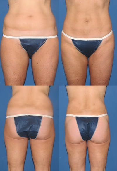 Liposuction Gallery - Patient 2158996 - Image 1