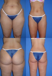Liposuction: Female Gallery - Patient 2394736 - Image 1