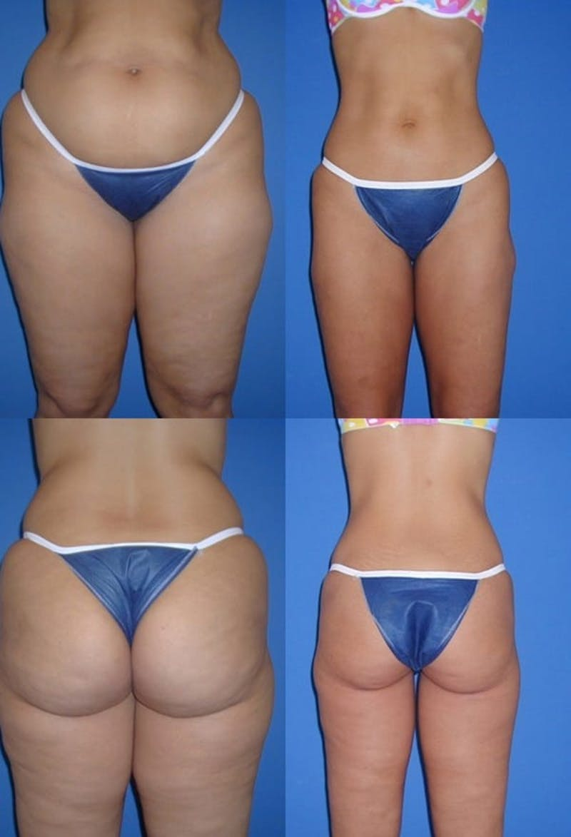 Liposuction Gallery - Patient 2159000 - Image 1