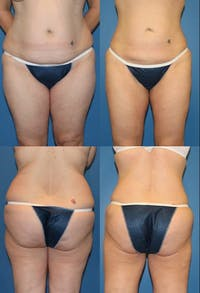 Liposuction: Female Gallery - Patient 2394737 - Image 1