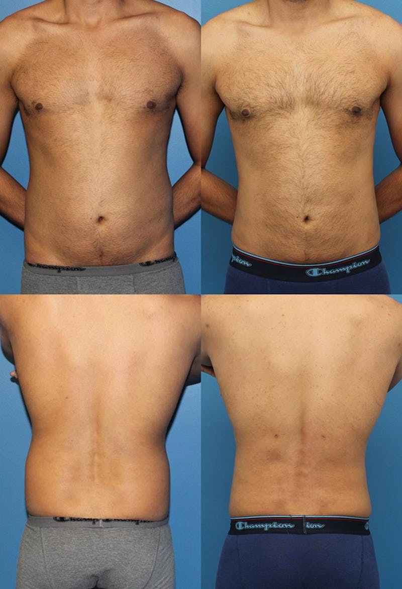 Liposuction Male Gallery - Patient 2394816 - Image 1