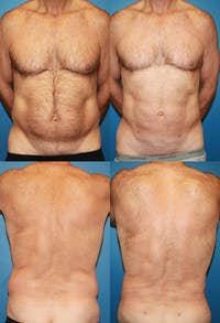 Liposuction Gallery - Patient 2159005 - Image 1