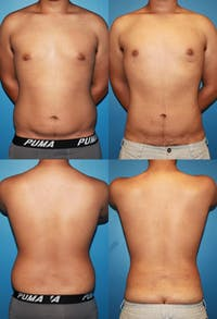 Liposuction Gallery - Patient 2159006 - Image 1