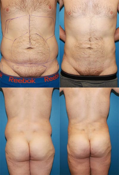 Liposuction Gallery - Patient 2159008 - Image 1