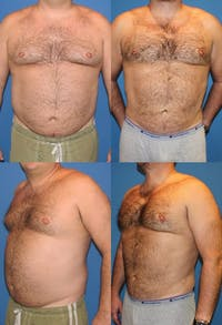 Liposuction Gallery - Patient 2159011 - Image 1