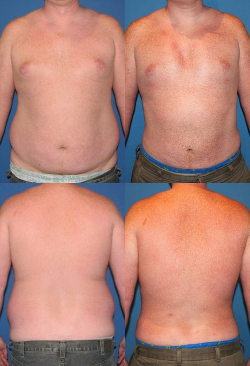 Liposuction Gallery - Patient 2159012 - Image 1