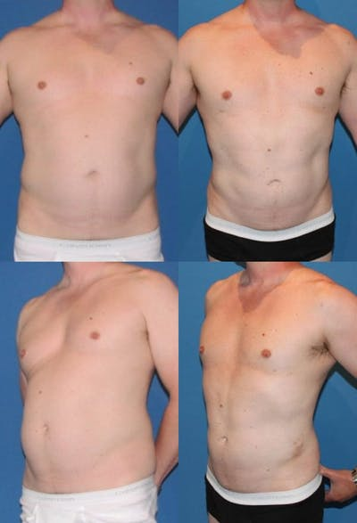 Liposuction Gallery - Patient 2159013 - Image 1