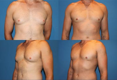 Liposuction Gallery - Patient 2159014 - Image 1