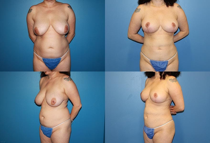 Breast Reduction Results in San Diego at Ranch & Coast Plastic Surgery