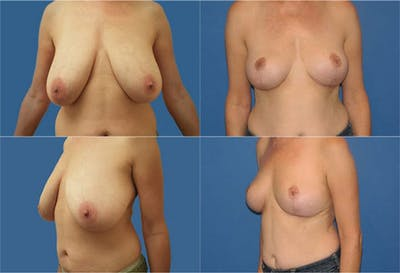 Breast Reduction Gallery - Patient 2161474 - Image 1