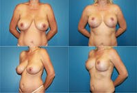 Breast Reduction Gallery - Patient 2161476 - Image 1