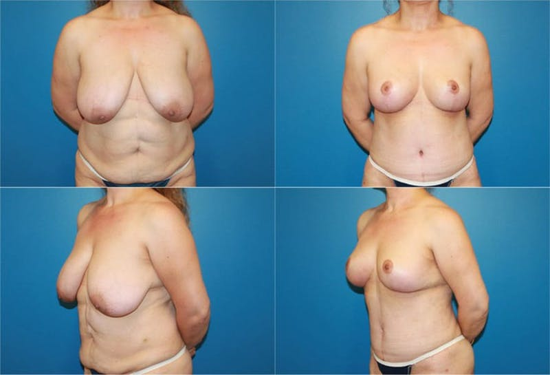 Breast Reduction Gallery - Patient 2161477 - Image 1