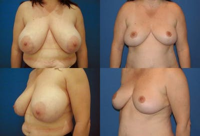 Breast Reduction Gallery - Patient 2161480 - Image 1