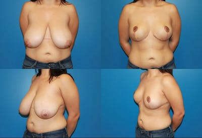 Breast Reduction Gallery - Patient 2161483 - Image 1