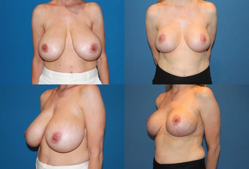 Breast Reduction Gallery - Patient 2161484 - Image 1