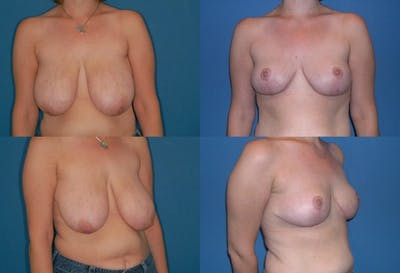 Breast Reduction Gallery - Patient 2161485 - Image 1
