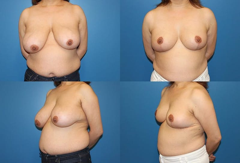 Breast Reduction Gallery - Patient 2161488 - Image 1