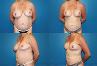 Breast Reduction Gallery - Patient 2161490 - Image 1