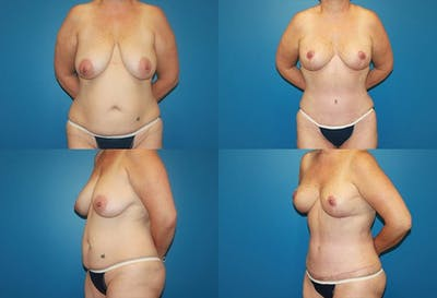 Breast Reduction Gallery - Patient 2161492 - Image 1