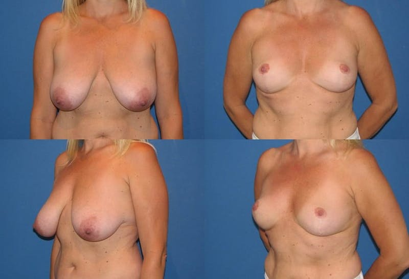 Breast Reduction Gallery - Patient 2161494 - Image 1