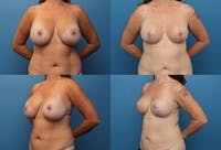 Reductive Augmentation of the Breast Gallery - Patient 2161510 - Image 1