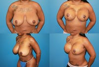 Reductive Augmentation of the Breast Gallery - Patient 2161512 - Image 1