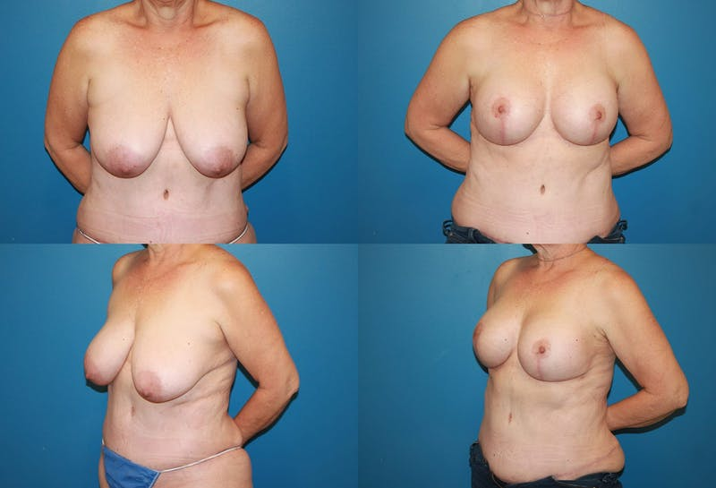 Reductive Augmentation of the Breast Gallery - Patient 2161513 - Image 1