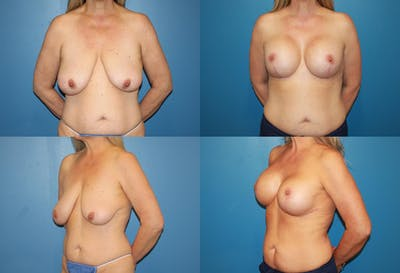 Reductive Augmentation of the Breast Gallery - Patient 2161514 - Image 1