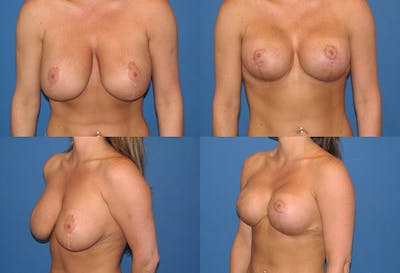 Reductive Augmentation of the Breast Gallery - Patient 2161516 - Image 1