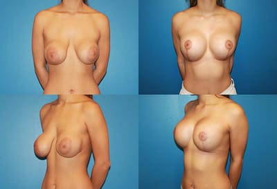 Reductive Augmentation of the Breast Gallery - Patient 2161518 - Image 1