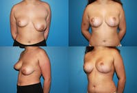 Reductive Augmentation of the Breast Gallery - Patient 2161519 - Image 1