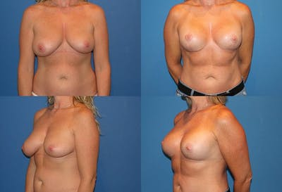 Reductive Augmentation of the Breast Gallery - Patient 2161520 - Image 1
